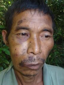 N'Gam Dau, captured and beaten by Burma Army.
