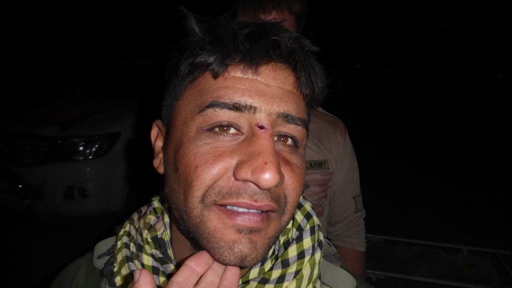 Kurd wounded in the face - fragment lodged in bridge of nose Photo; FBR
