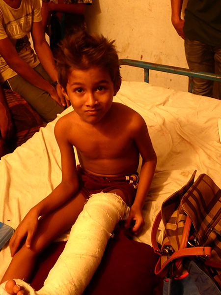 The boy who survived his house being burned and part of the roof falling on his leg.