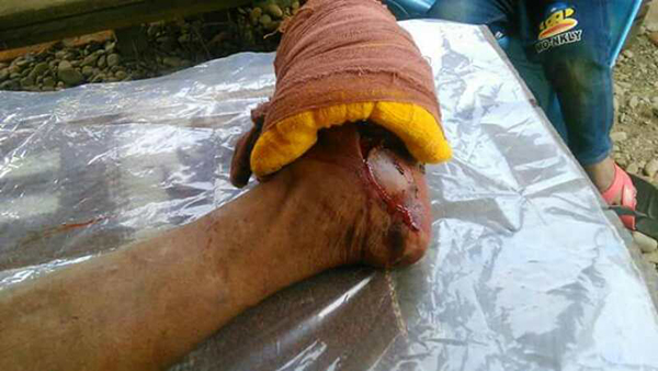 Mr. Shang Thing La Doi (56) from Namti Lambraw Yang village being treated in Myitkyina after stepping on a landmine on May 10.