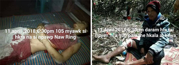 Left: Npawp Naw Ring who was killed by a 105mm shell. Right: Npyaw Yaw Han who was Injured by a fragment of the 105mm shell. Both photos provided by Kachin Independence Army.