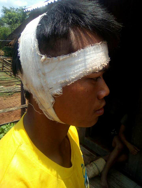 Khun Mg Loi after receiving treatment from having his ear cut off by the Burma Army.