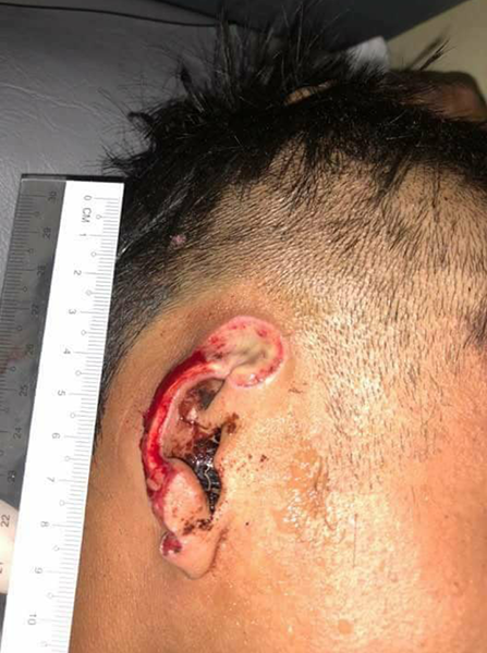 Khun Mg Loi's ear after the attack.