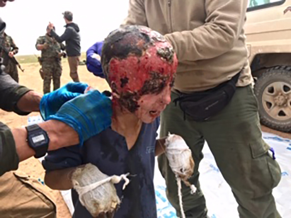 A boy, who was hit by mortar, being treated by our team. For video, please click the photo.