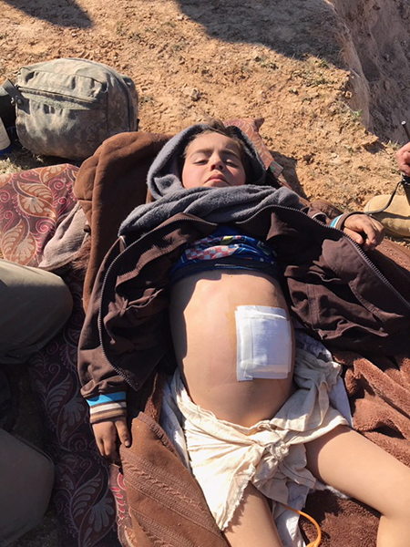 Above and below: some of the wounded who have fled the last ISIS stronghold.