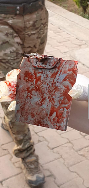 Part of a Turkish drone munition removed from a victim.