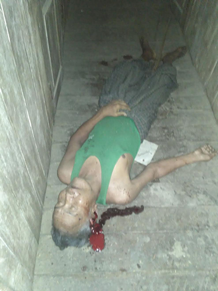 One of the Chin villagers who was hit in the bombing.