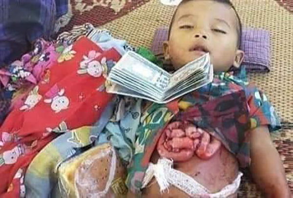 A child from Wohmah Village killed when Burma Army jets bombed the village on March 17.
