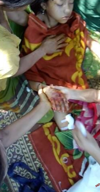 11 Year Old Naw MeeMee being treated after Burma army mortar attack