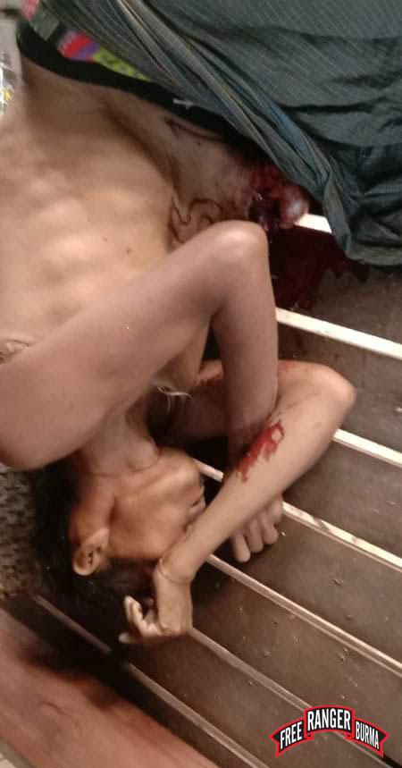 Saw Pah Lo Poe, killed by Burma Army airstrike 2
